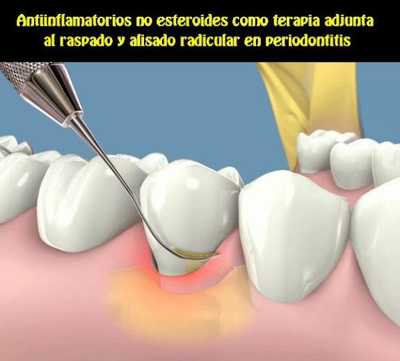 antiinflamatorios-periodontitis