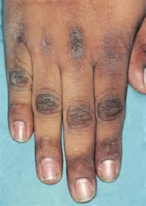 Dark skin patches due to pcos diva