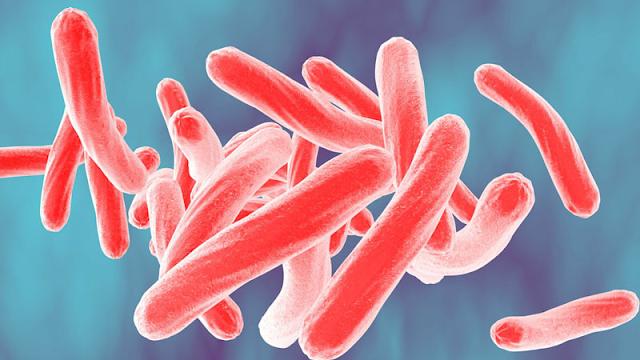 Tuberculosis là gì?