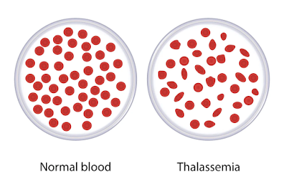 thalassemia blood