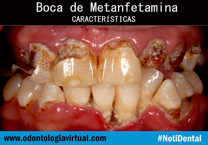 boca-metanfetamina