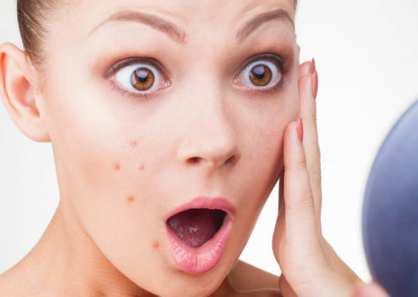Finally here is the cure for pimple locally