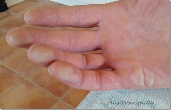Rogers Hand