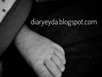 Cara kurangkan kuning bayi: Hari ke-11 Amna Sofia