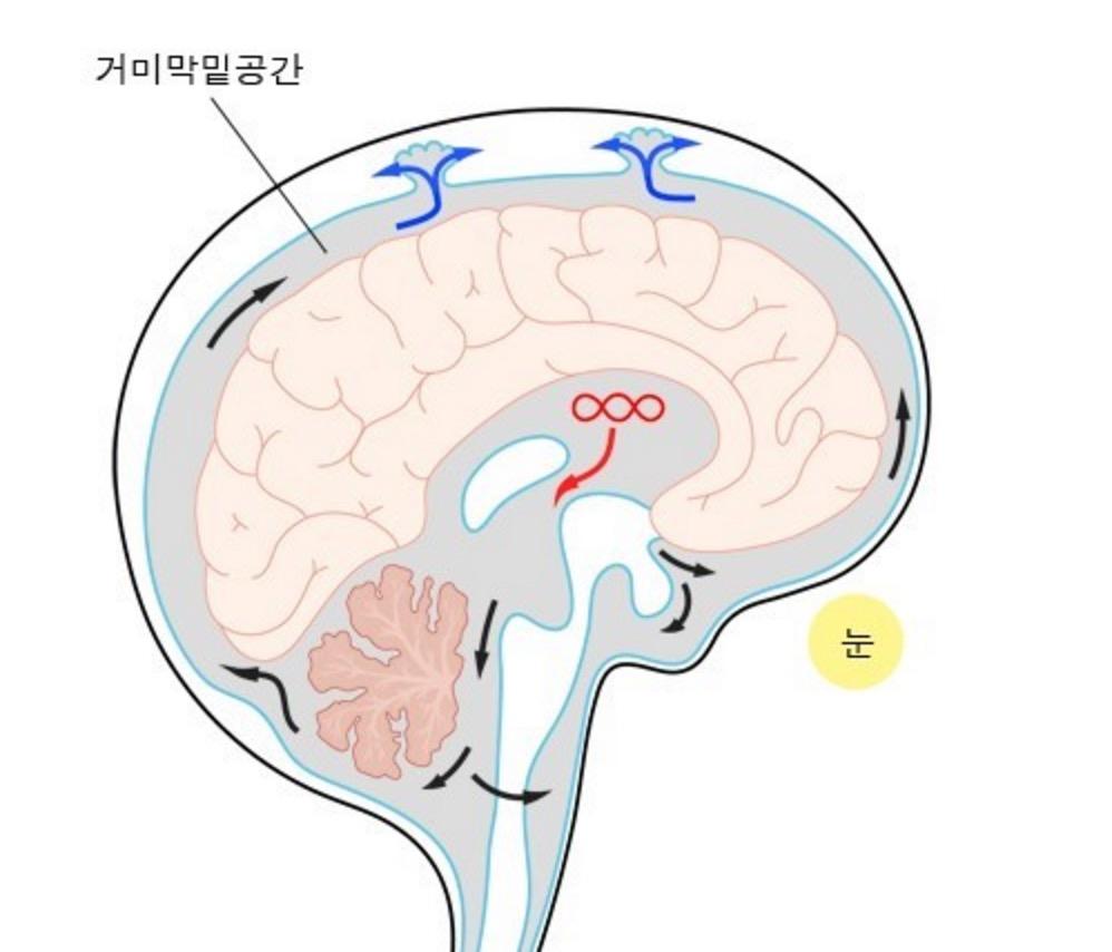 뇌수막염.jpg