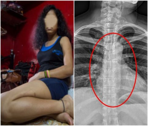Ashawo Ripped Condom Off Client's Pen!s and Swallowed it to Hide Evidence (Photos)
