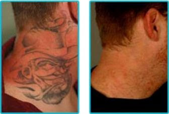 Laser Tattoo Removal more info   Orange County and Los Angeles CA