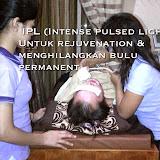 IPLIntensePulsedLigth