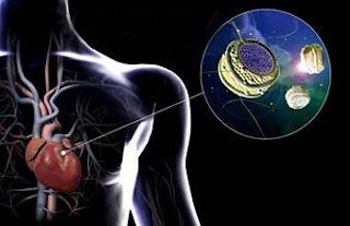 Faktor Penyebab Kolesterol Tinggi & Pengobatannya