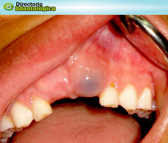 Tumor Odontogenico