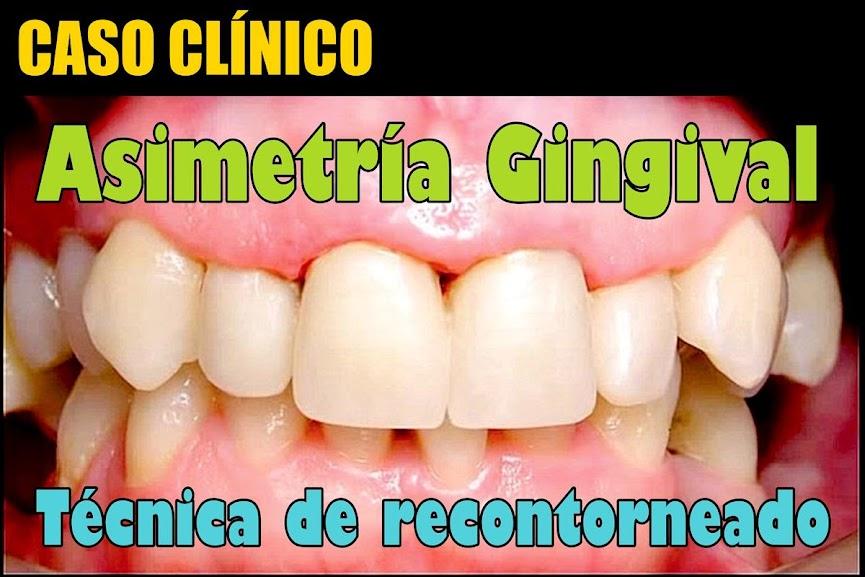 asimetria-gingival
