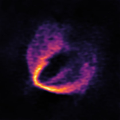ALMA Discovers Trio of Infant Planets