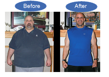 Weight Loss Columbus OH | Advanced Medical Weight Loss at 140 Dorchester Sq S, A, Westerville, OH