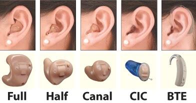 聽力保健工作手紮: 助聽器多少錢?助聽器價格!