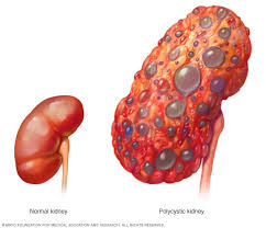 HEALTH: IMPORTANT THINGS YOU MUST KNOW ABOUT YOUR KIDNEY.