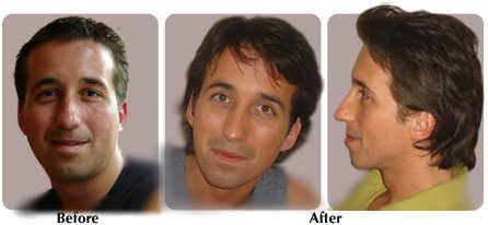Применение аэробики до и после мужчина