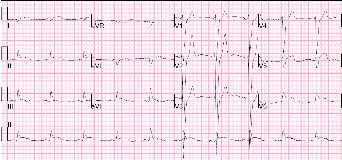 Dr Smiths Ecg Blog Lbbb With Acute Stemi Due To Ruptured Obtuse