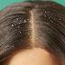 3 طرق طبيعية لعلاج قشرة الشعر