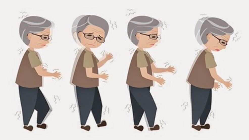 Run tay chân, chân không nhấc cao, còng lưng khiến người bệnh Parkinson dễ bị té ngã