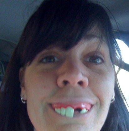 https://lh3.googleusercontent.com/-sdP3STE8I5E/TYEoojBjpfI/AAAAAAAAAzk/XdJ0rtD8H1U/funny+teeth.png
