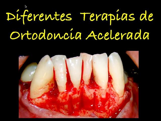 ortodoncia-acelerada