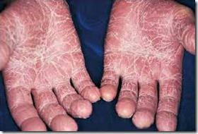 psoriase-palmo-plantar-2