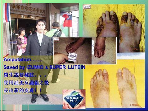 Slide14 Ubat Herbal Untuk Diabetes (Kencing Manis) Dan Luka Gangren