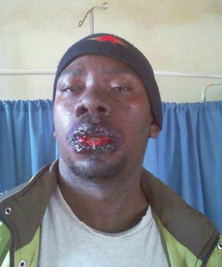 See How a Man's Body Badly Reacted After Allegedly Consuming Fake Malaria Drugs (Graphic Photos)