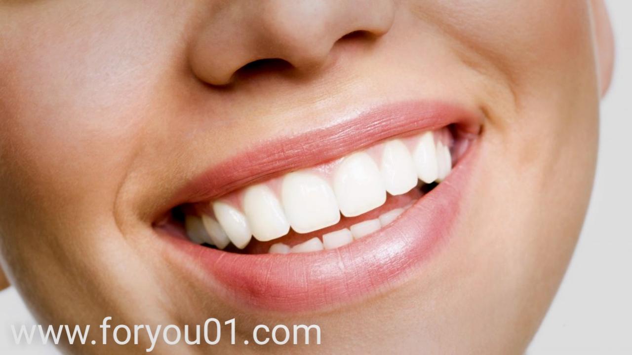 اصفرار الأسنان
