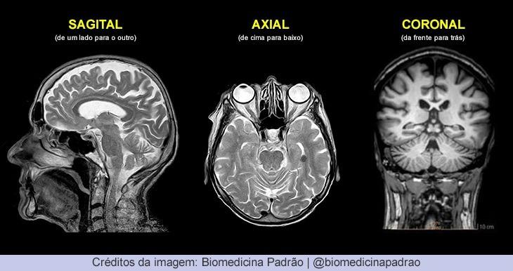 Planos anatômicos na imagenologia