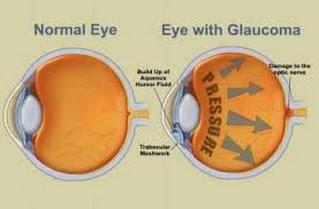 Pengobatan Herbal Untuk Mata Glaukoma