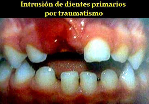 intrusion-dental