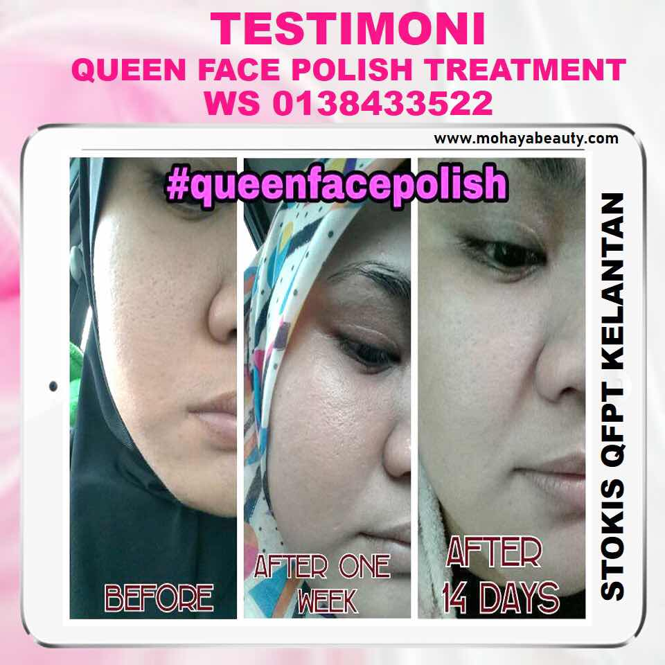 Testimoni / feedback pengguna Queen Face Polish Treatment 😍 . . Gunakan tanpa was was utk merawat kulit anda yg tgh bermasalah; 😪 BREAK OUT 😪 JERAWAT 😪 JERAGAT 😪 KUSAM 😪 GELAP 😪 KERING 😪 BERMINYAK 😪 WHITEHEAD/BLACKHEAD 😪 LIANG PORI TERBUKA . . Sesuai untuk semua golongan termasuk lelaki. Set skincare mudah. 1 set hanya ada pencuci dan cream treatment sahaja 😍 . . RM110 tak termasuk pos seluruh malaysia. . . Macam mana nak dptkan? Terus tekan link di www.mohayabeauty.com 😘