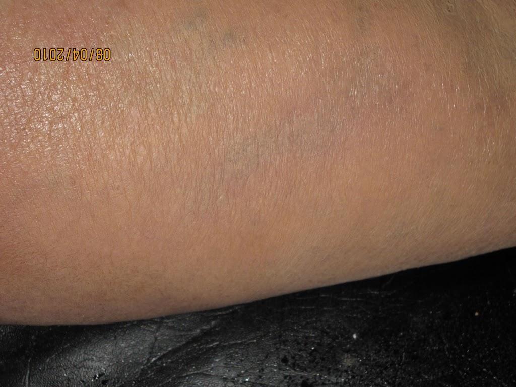 leg after 2