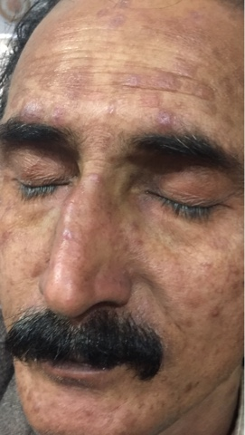 topical steroids cystic acne