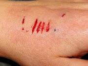 Arti mimpi tangan terluka berdarah dan hikmahnya bagi kita