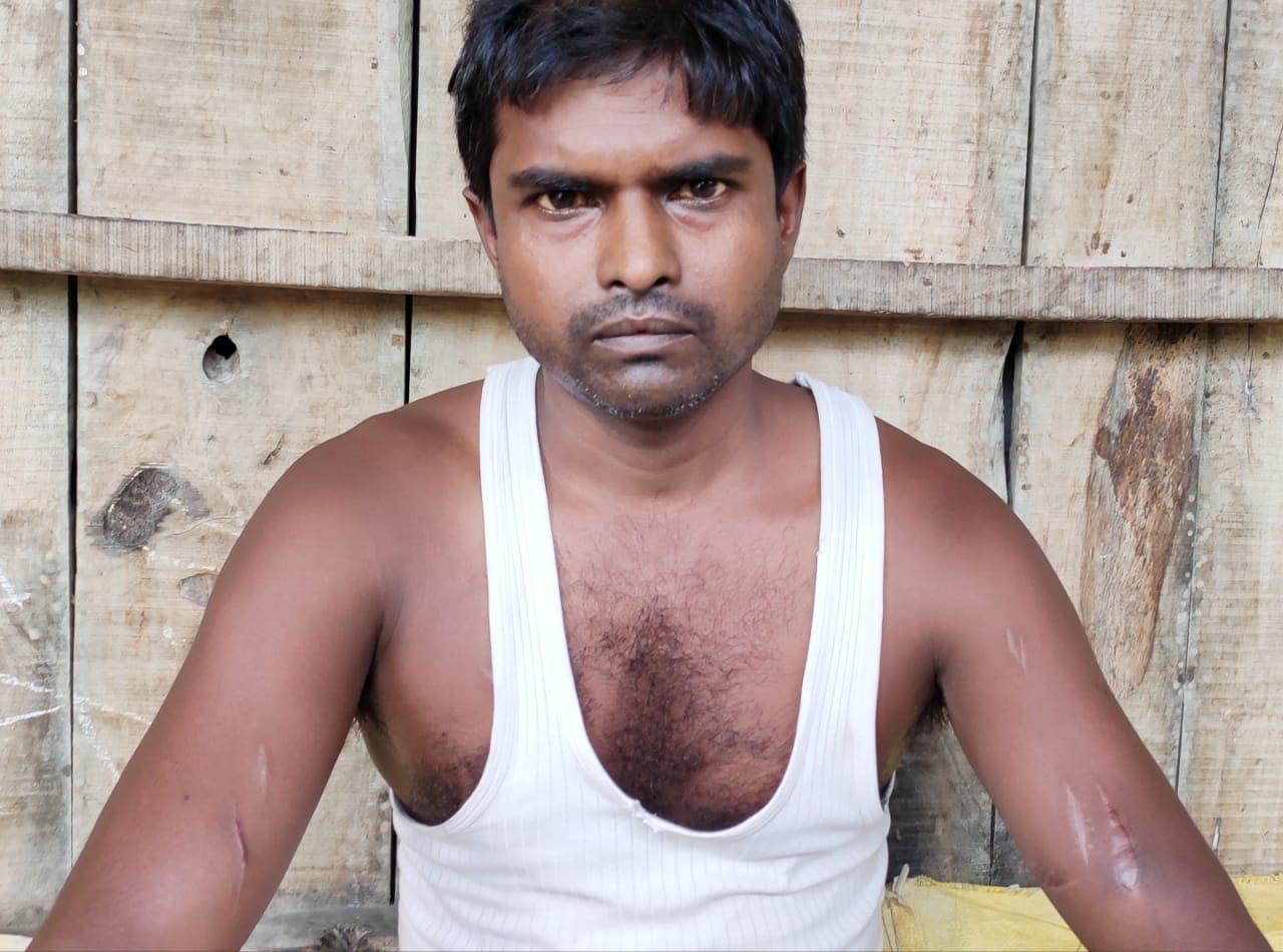 ताजपुर:शरीर पर 13 जगह धारदार हथियार से गोदा,पैसा लेकर इंजूरी बनाया सिंपल, अस्पताल में पीड़ित 23 जून से करेगा आमरण अनशन।