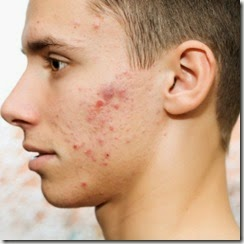 Acnes on face treatment