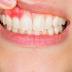 Paraíba teve cerca de 380 novos casos de câncer de boca em 2020 e odontólogo alerta para sinais da doença