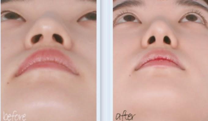 Khép cánh mũi Thu gọn cánh mũi Cà Mau | Phòng Khám Chuyên Khoa Kỹ Thuật Cao IMedic.vn | Bs chuyên khoa Nguyễn Đặng Duy
