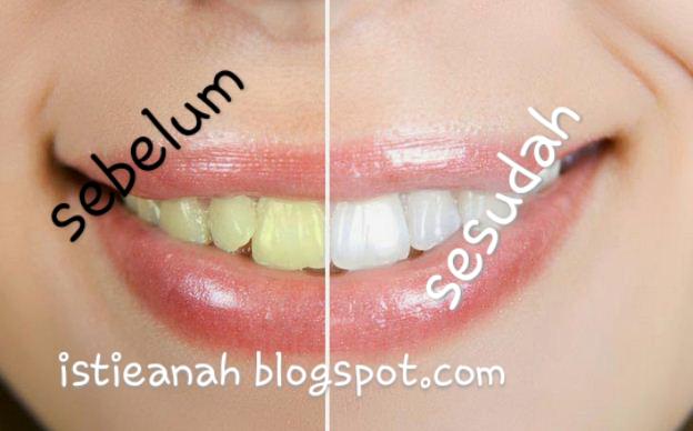 Cara Cepat Memutihkan Gigi Dalam 3 Menit
