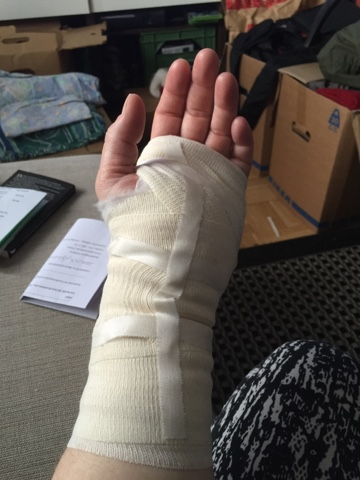 smärta efter karpaltunneloperation