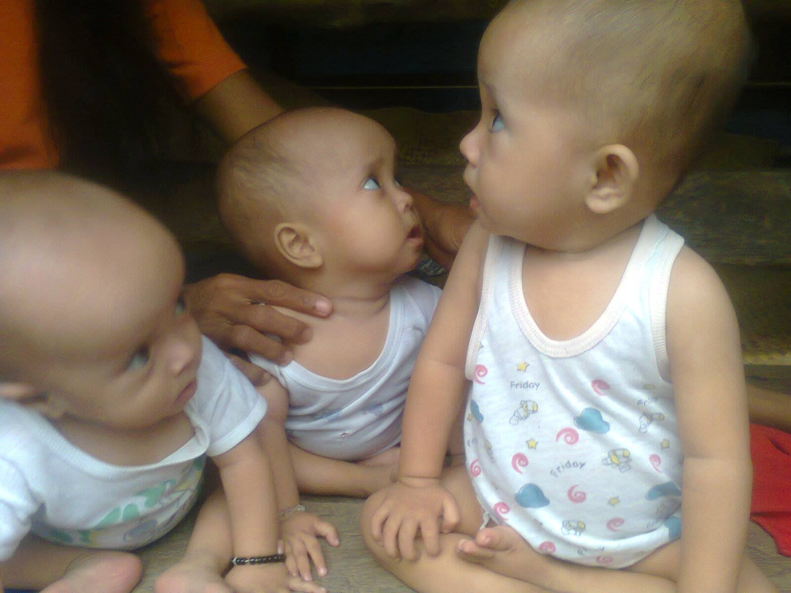 Image of Plight of Malnourished Triplets in the hands of Kublihan