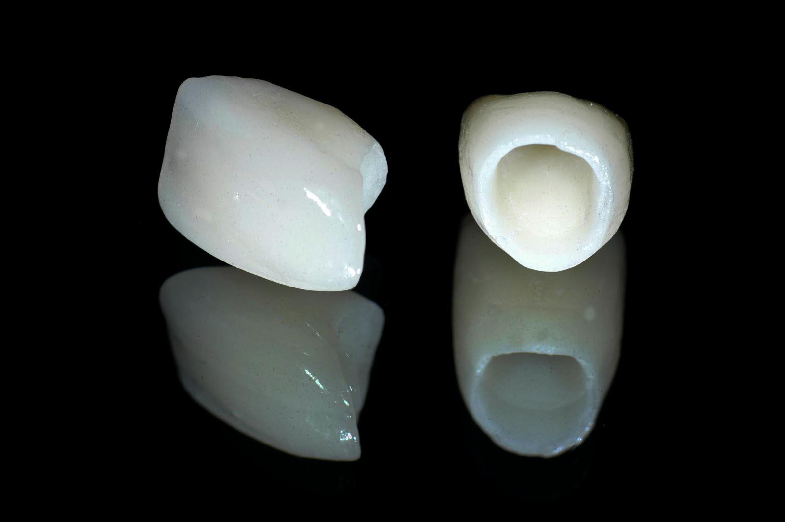 Mài răng hô bọc sứ răng hết hô - thẩm mỹ tối đa - tiết kiệm chi phí