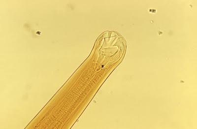 Ancylostoma spp.(鉤蟲) - 小小整理網站 Smallcollation