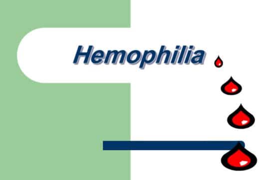 مرض الهيموفيليا pdf