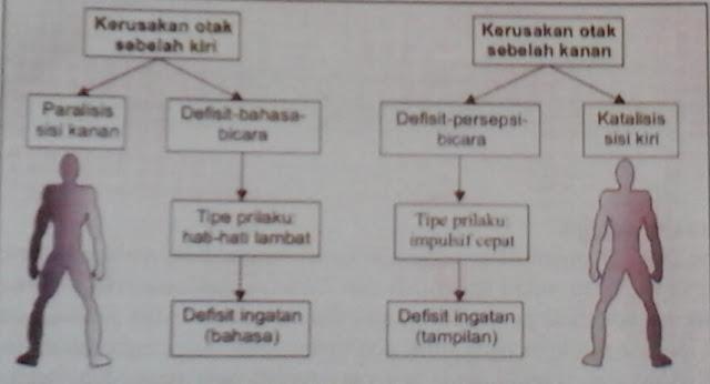Perbedaan antara strok hemisfer kiri & kanan