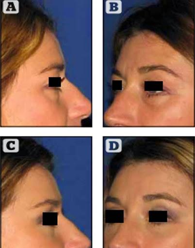 Copyright Dr. POIGNONE© : résultat paupières supérieures chez une patiente de 35 ans avant après blépharoplastie supérieure trans conjonctivale