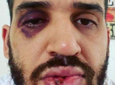 Médico é agredido após alertar pessoas sobre riscos da Covid-19