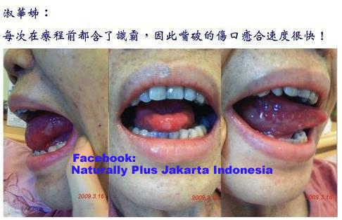 kanker+nasofaring8 Pengobatan Herbal Kanker Mulut